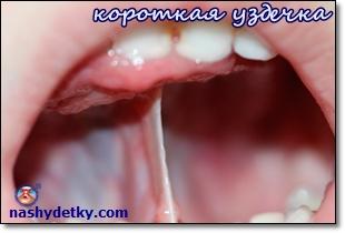 korotkaya-uzdechka-yazyika