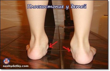 плоскостопие у детей лечение